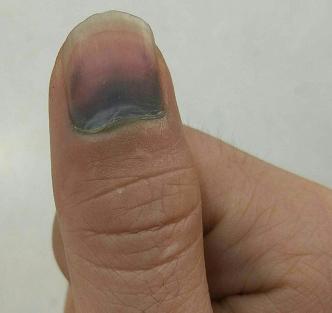 右手大拇指被夹淤血